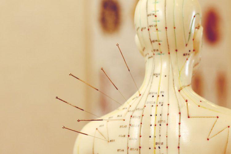 acupuncture sciatique