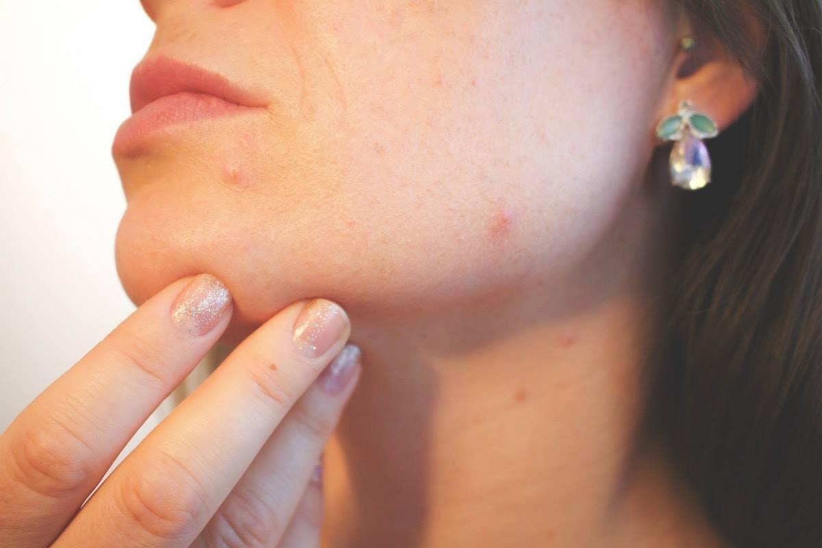 comment protéger sa peau