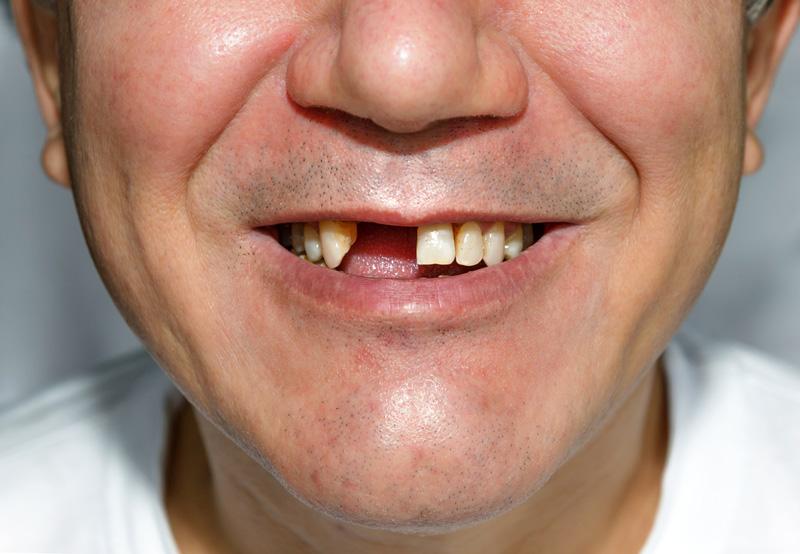 perte de dents